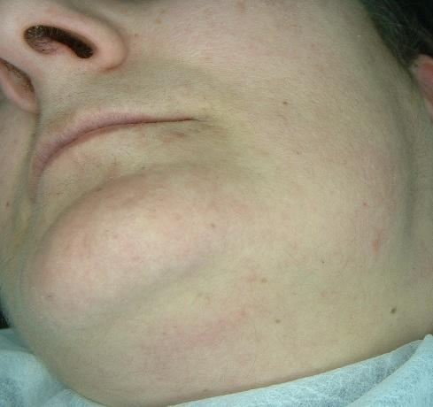hirsutismo facial eliminado con DED