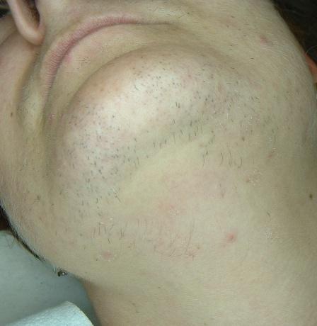 hirsutismo facial