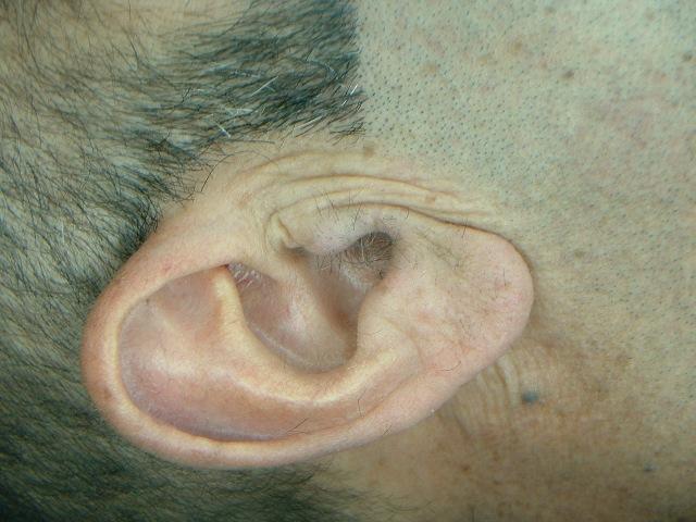 orejas hombre